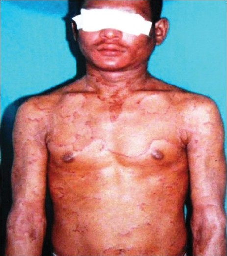 Figure 2 :Annular and polycyclic, scaly patches with double edged scales at the periphery of the lesions involving trunk and extremities