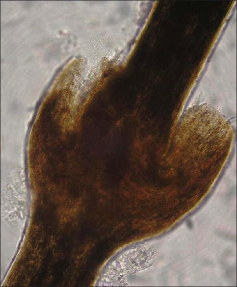 Figure 4 :The light microscopic examination of scalp hair showed the typical trichorrhexis invaginata (bamboo hair)