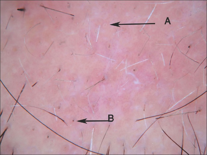 Figure 5: Alopecia areata dermoscopy - showing yellow dots (A) and short cadaverized hairs (B)