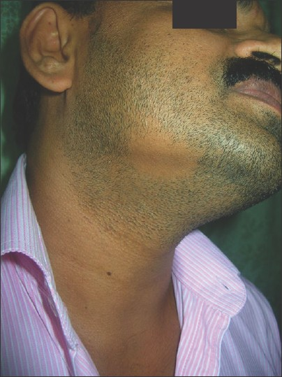 Figure 9: Alopecia areata on the beard