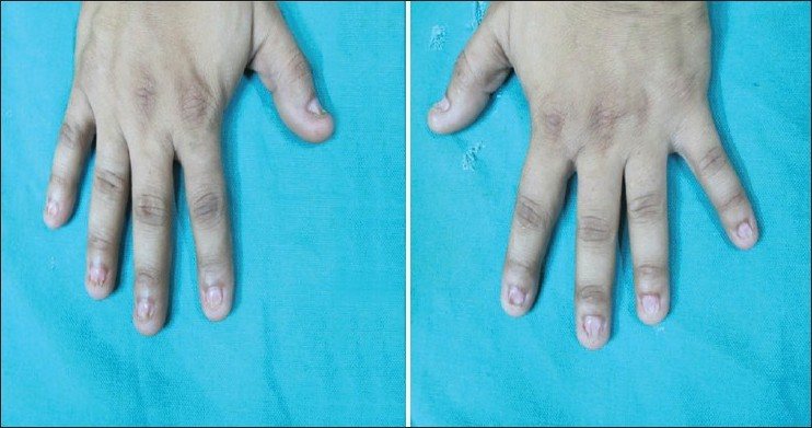 Figure 2: Dystrophy of bilateral finger nails with distal onycholysis and short nail plates