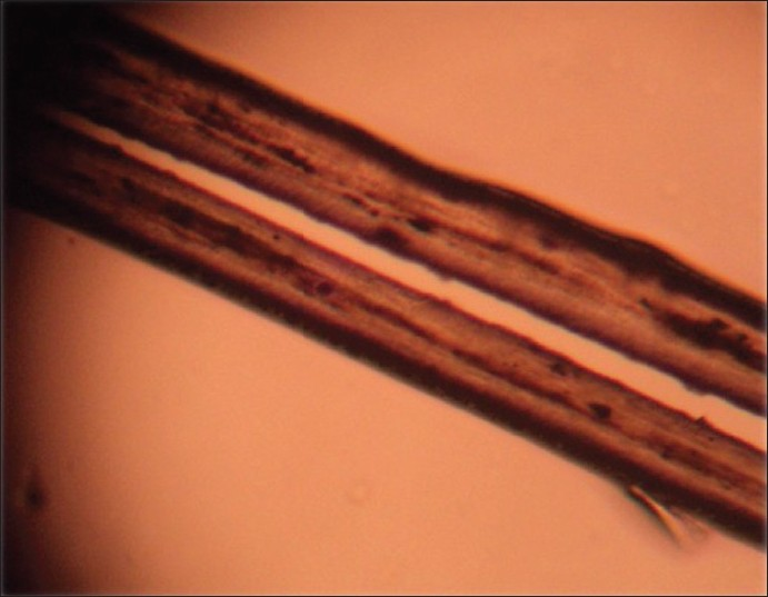Figure 5: Polarized light microscopic examination of the hair showed bright shafts with different individual colors, resembling normal white hair