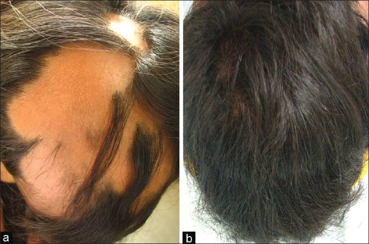 Figure 2: (a) A 15-year-old girl with two-year history of more than 50% involvement of AA (b) Cosmetic response seen after six months of treatment