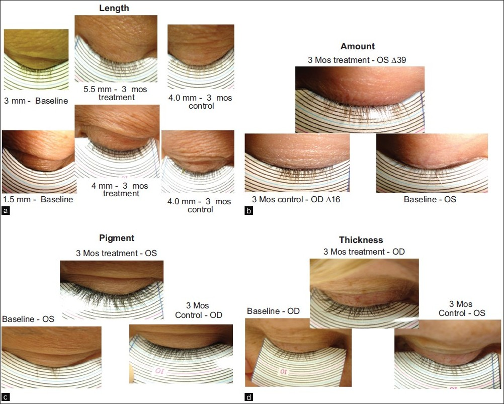 The Role Of Bimatoprost Eyelash Gel In Chemotherapy Induced