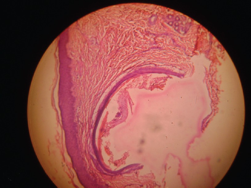 Figure 4: Histopathology of a papule showing cyst in dermis (H and E ×40)