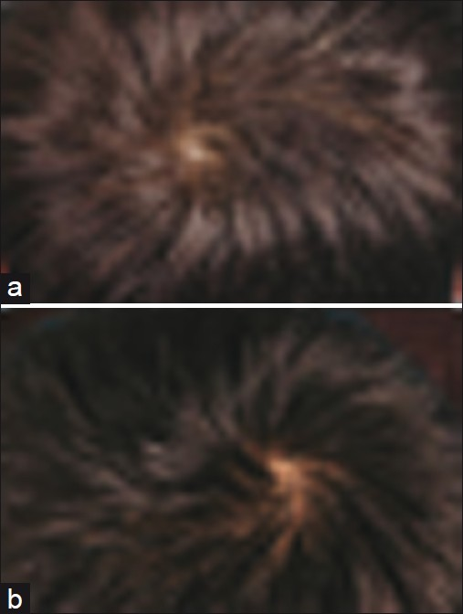 Figure 2: (a) Hair casts noted in Patient 2; (b) Clearance of hair casts in Patient 2 after 2 weeks of Doxycycline