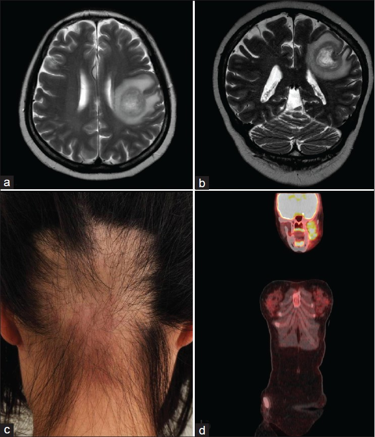 Figure 1: Magnetic resonance imaging of diffuse large B-cell lymphoma in a 47-year-old Korean female (Case 1): (a) horizontal view of the T2- weighted image; (b) coronal view of the T2-weighted image; (c) Occipital rectangular-patterned alopecia areata in a 22-year-old Korean female (Case 2); (d) 18F-fluorodeoxyglucose (FDG) uptake in the alveolar soft part sarcoma (Case 2; arrow; coronal view of an FDG-positron emission tomography/computed tomography scan)