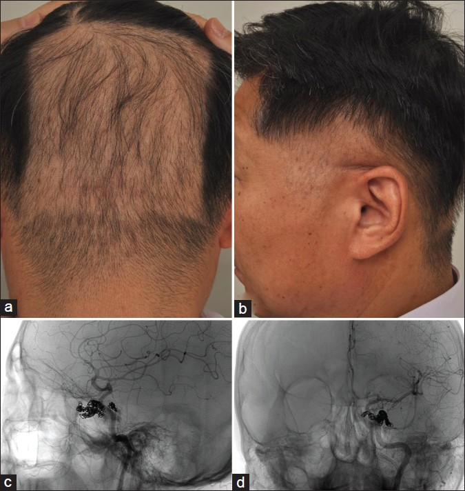 Figure 2: (a) Rectangular-patterned occipital alopecia areata in a 52-year-old Korean male (Case 3); (b) Profile of the same patient showing temporal area alopecia areata; (c) Coronal view and (d) right anterior oblique view of cerebral embolizations