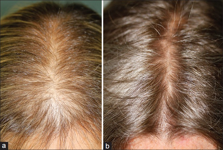 The Gallery For Gt Zinc Deficiency Hair Loss