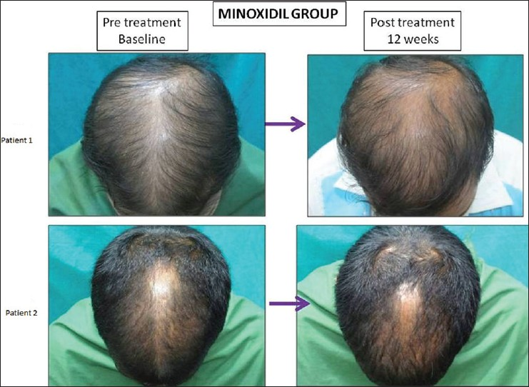 Figure 7: Grade 0 response on 7‑point evaluation scale in patient no. 1 and grade + 1 response in patient no. 2 in the Minoxidil treated group