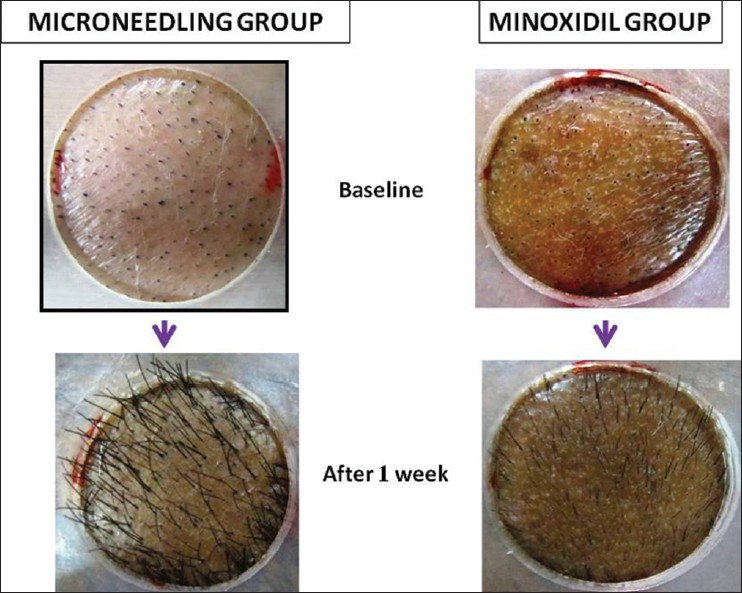 Figure 8: Earlier and faster hair re‑growth at 1 week noted in Microneedling treated group