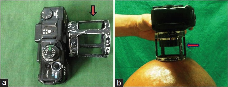 Figure 1: (a) A specialized adapter attached to the camera; and (b) Photograph of scalp taken at a fixed distance with the help of the adapter