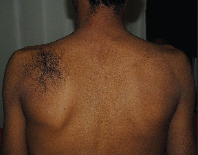 Figure 1 Patch of hair over Spina Bifida Occulta Hair