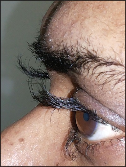 Figure 1: Clinical photograph showing excessive hair growth of eyelashes