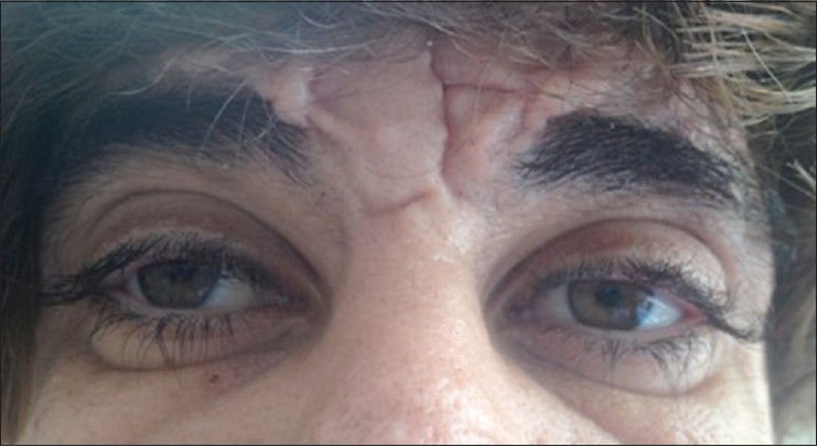 The action of prostaglandins on ciliary hypertrichosis: A ...