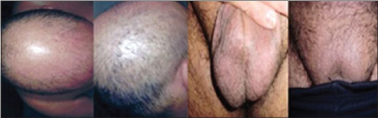 Figure 1: Improvement of plucked hair in two different sites (head and pubic areas) after 6 months of mood stabilizer plus antipsychotic therapy