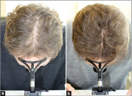 Figure 3 Concomitant treatment with topical 5% minoxidil in a 55-year-old male adding on low-level laser therapy (LLLT) to 4 year pretreatment with 5% ... & Use of low-level laser therapy as monotherapy or concomitant therapy ...