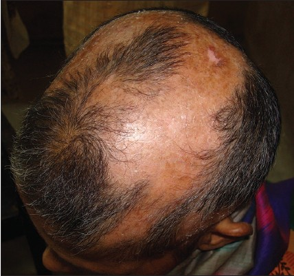 Figure 1: Patches of scarring alopecia on the scalp showing dryness and scaling