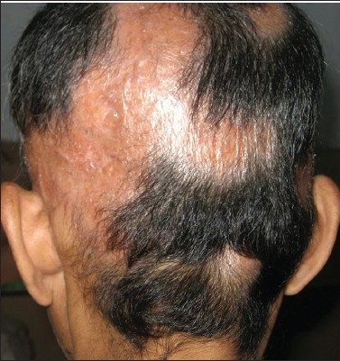 Figure 3: Normal hair-bearing lesions at the occipital area