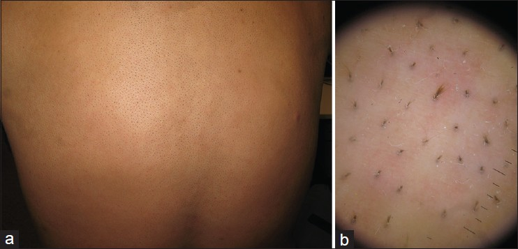 Figure 1 A Giant Patch Consisting Of Irregular And Co Thicker Hairs Over The Entire Back Arrows Indicate Margin Insets Are Close Up