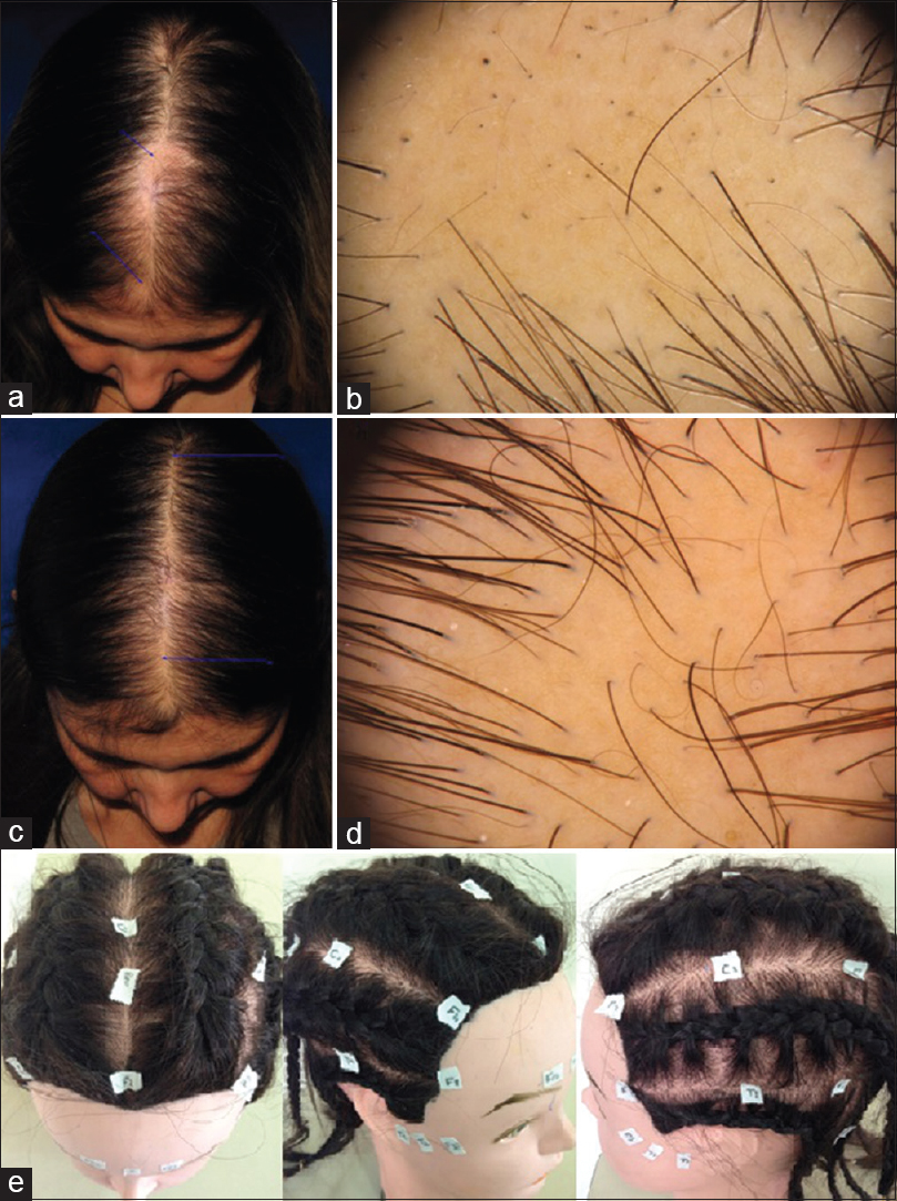 Patchy Traction Alopecia Mimicking Areata Barbosa Ab Donati A