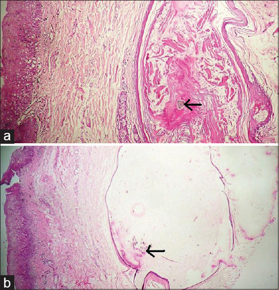 Figure 2: Microphotograph (a) and (b) showing transverse sections of multiple thin vellus hair shafts (arrow) and keratinous material in dilated hair follicles in different areas of the lesion (H and E, ×400)