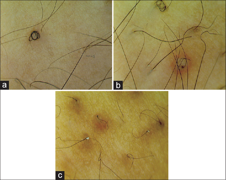 A rare association of pili multigemini and rolled hairs in a young