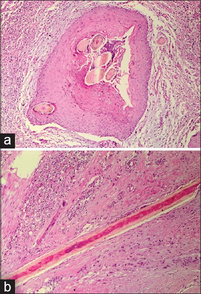 Figure 2: (a) Histological examination in the first patient revealed a sinus tract, and multiple broken hair shafts. The sinus was surrounded by benign squamous epithelium, acute, and chronic inflammatory cells with foreign body giant cells (H and E, ×40); (b) Histological examination in the second patient showed a sinus tract with multiple broken hair shafts and foreign body type granulomas (H and E, ×40)