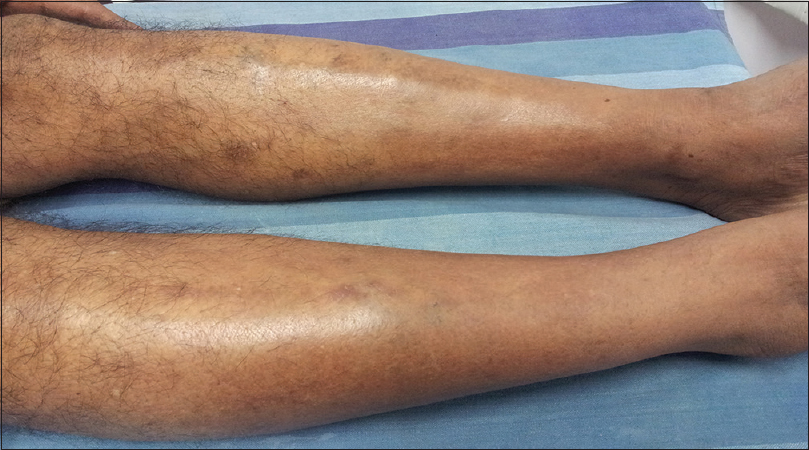Figure 1: Well-defined circumscribed nonscarring alopecia on the distal lower anterolateral area of both the lower legs
