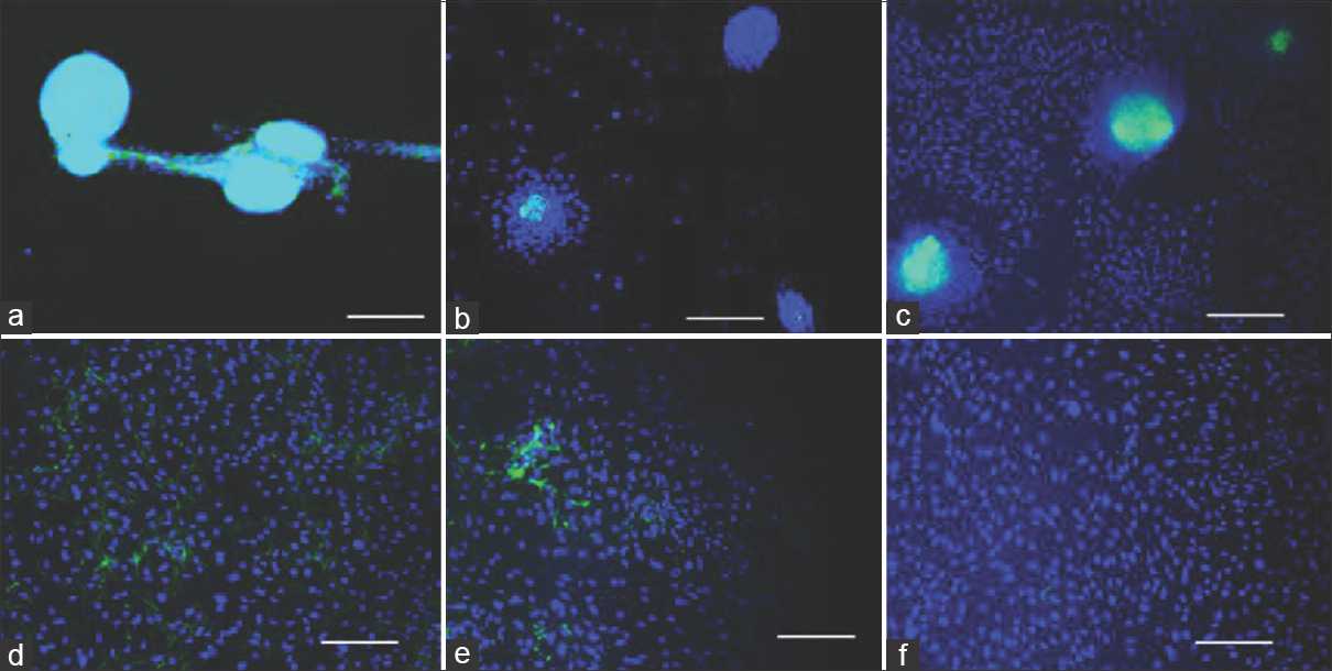 Figure 1: Human dermal papilla cells were grown with different substrates, base media and sera (lamb serum or fetal calf serum). (a) 20% (v/v) lamb serum + RPMI, uncoated glass substrate, (b) 20% (v/v) lamb serum + minimum essential medium, collagen-coated permanox, (c) 20% (v/v) lamb serum + minimum essential medium, collagen-coated polystyrene, (d) 10% (v/v) fetal calf serum + minimum essential medium, uncoated glass, (e) 10% (v/v) fetal calf serum + RPMI, uncoated permanox, (f) 10% (v/v) fetal calf serum + minimum essential medium, collagen-coated polystyrene. Aggregation is visualized by versican immunofluorescence: green, DAPI: Blue. Scale bar = 200 μm