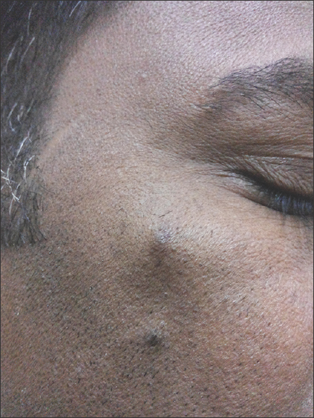 Figure 1: An asymptomatic nodule seen on the upper part of the right cheek in our patient