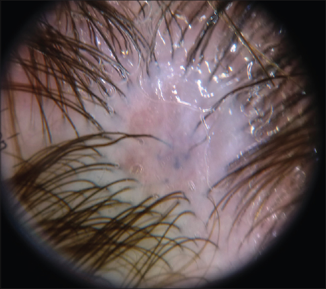 Figure 2: Dermoscopy of aplasia cutis: reddish background, thin, lineal vessels, and few hair bulbs seen by the translucency of the lesion