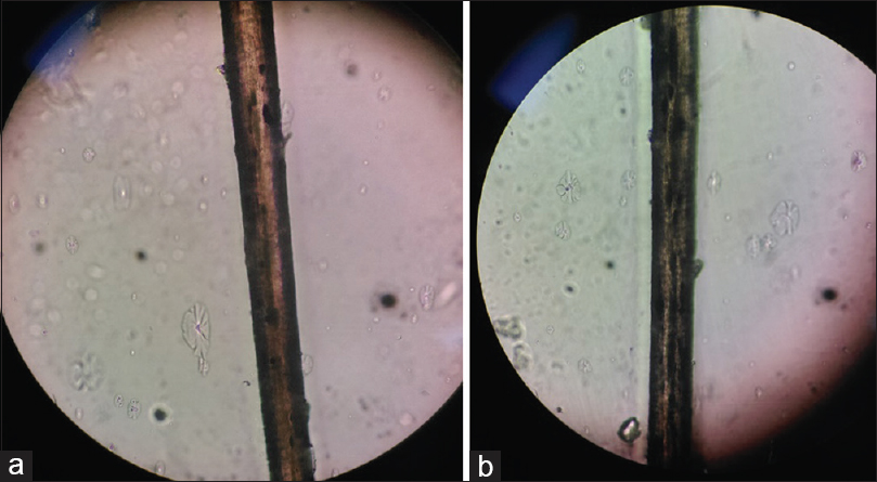 Figure 7: (a) Light microscopy of the hair shaft showing inconclusive results. (b) Light microscopy of the hair shaft showing inconclusive results