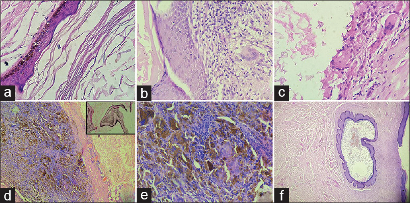 Epidermal cysts: A clinicopathological analysis with