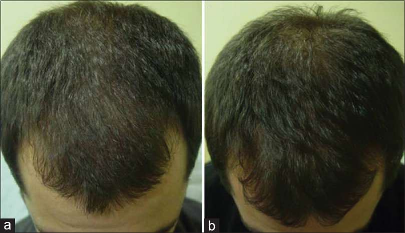Figure 2: (a) A 33-year-old male with male androgenetic alopecia Ebling II, (b) showing improvement after 3 sessions of treatment