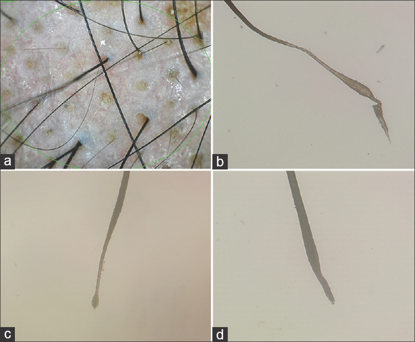 Figure  2: (a) Dermoscopy findings at the initial visit of case 1 include yellow dots, black dots, and short vellus hairs. (b) Microscopic examination of the hair shaft of the pulled-out hair in case 1 shows marked distortion of the proximal hair, appearing as a continuous irregularity or an abrupt narrowing of the diameter of hairs and the absence of typical clubbing. (c) Microscopic examination of a hair from case 2 shows abrupt narrowing of the diameter of hairs and clubbing. (d) In patient 3, there is abrupt narrowing of the diameter of hairs but without clubbing