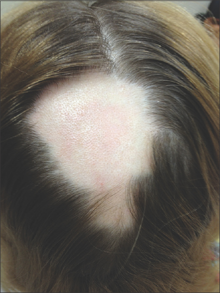 Alopecia Areata Review Of Epidemiology Clinical Features