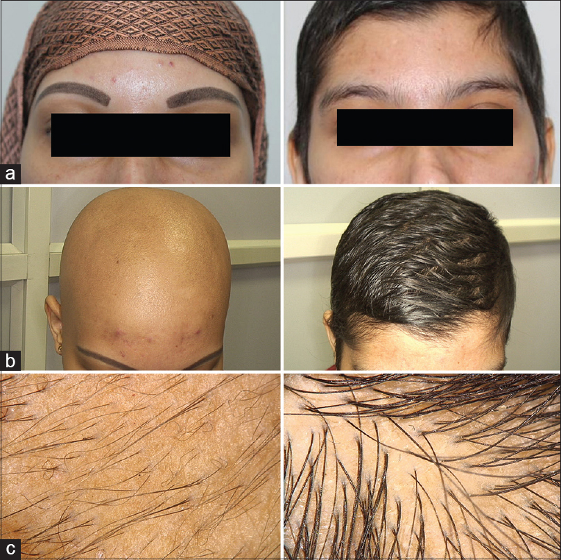 an introduction to the issue of alopecia areata Alopecia areata is an extremely common autoimmune condition affecting hair severe forms of alopecia areata exist, with existing treatments consisting of systemic immunosuppressants with numerous side effects recently, breakthroughs have been made in both understanding the pathogenesis of alopecia .
