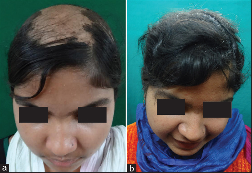Figure 1: 15 year old female patient with alopecia subtotalis (a) Before Turban PUVAsol. (b) After Turban PUVAsol