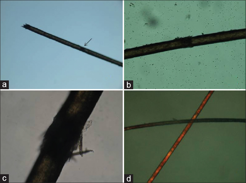 Figure 2: (a) Light microscopy of hair showing trichoschisis (black arrow) and hairbrush end. (b) Higher magnification of trichoschisis. (c) Higher magnification of trichorrhexis nodosa. (d) Polarized microscopy of hair showing tiger tail banding
