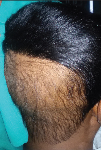 Figure 1: Alopecia patch on the scalp in the occipital area