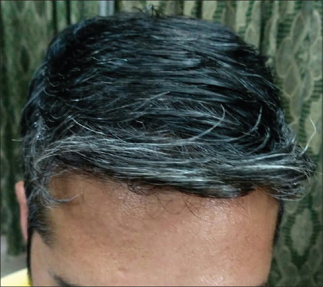 Figure 3: Moderate grade of graying