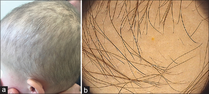 Figure 1: (a) Short sparse scalp hair, fine in texture, with low overall density. (b) Trichoscopy showing short, thin and vellus hairs and a yellow dot