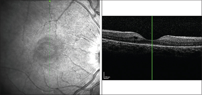Figure 2: Optical coherence tomography showing irregularity of the photoreceptor layer and intraretinal cysts