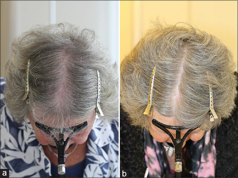 A comment on the science of hair aging Trueb RM, Rezende HD