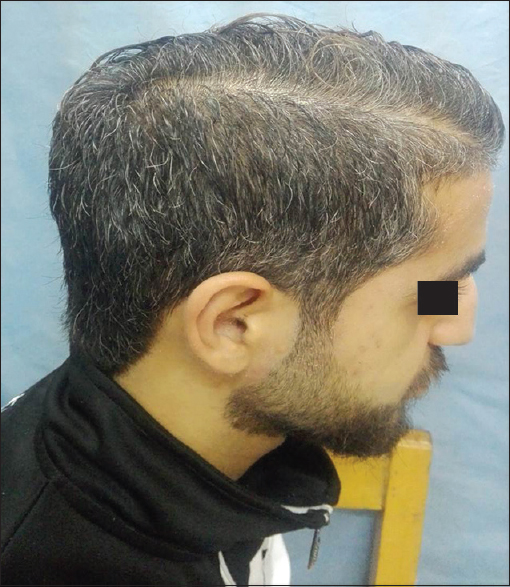Figure 1: Trace severity of premature hair graying (HWS 1), showing <25% white hair. HWS – Hair whitening score