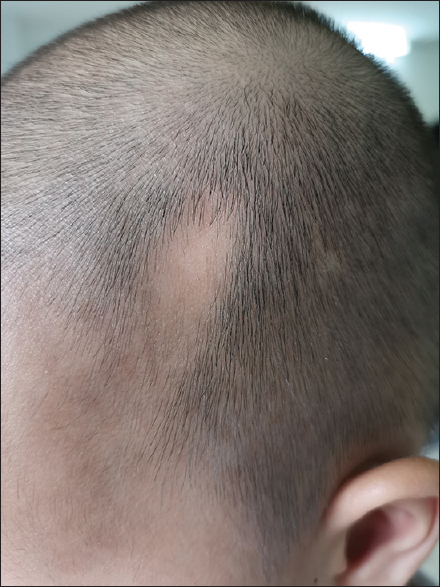 Figure 1: A triangular-to-oval patch of alopecia over the left frontotemporal region of the patient's scalp