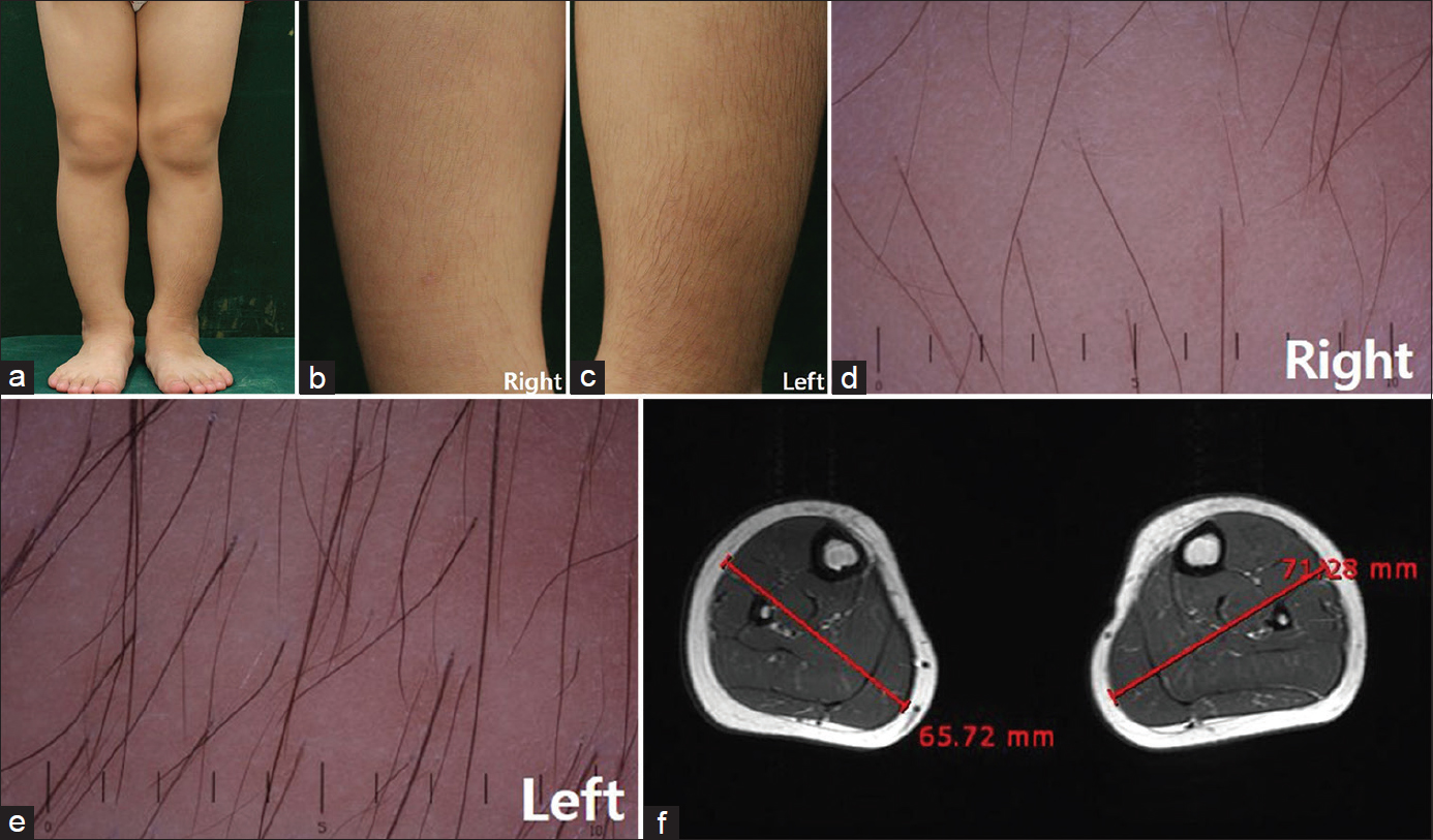 Figure 1: (a) The left leg was thicker than the right. (b and c) The density of hairs on the shin was greater on the left side than the right. (d and e) Folliscope image showed increased number and thickness of hairs on the left shin. (f) Magnetic resonance image of the calf revealed relatively hypertrophic muscles in the left calf. The maximal diameter of the calf measured on the image was longer on the left side compared to the right