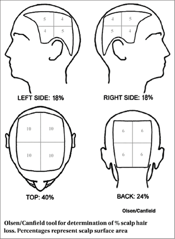 Figure 1: Olsen/Canfield tool for the determination of percentage scalp hair loss. Percentages represent scalp surface area