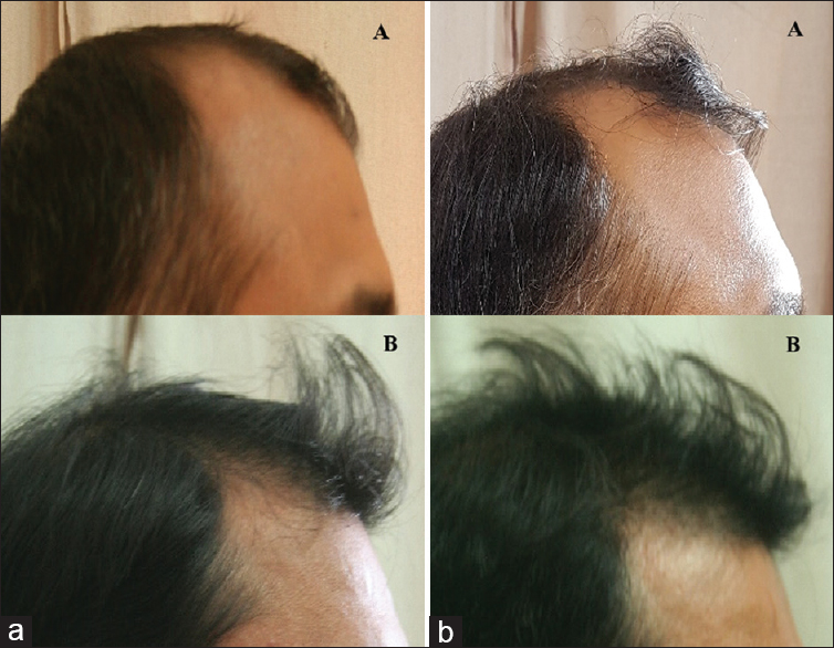 Figure 7: Clinical photographs over frontal region of both the groups. (a) Pretreatment: (A) mesotherapy, (B) minoxidil. (b) Posttreatment: (A) mesotherapy, (B) minoxidil